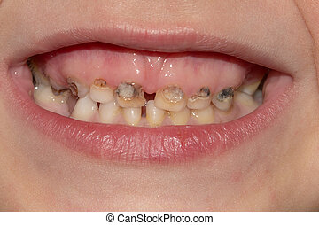 Dental medicine and healthcare - human patient open mouth ...