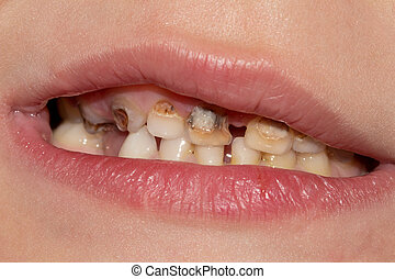 Dental medicine and healthcare - human patient open mouth showing caries teeth decay