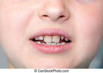 Dental medicine and healthcare. Little boy patient open mouth showing caries teeth decay