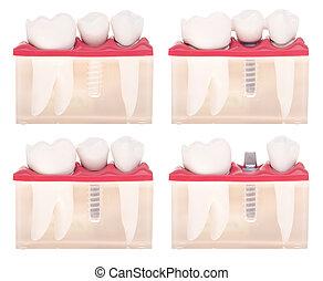 dental, modell, implantat