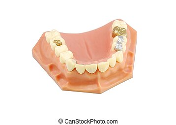 dental, modell, (with, verschieden, treatments)