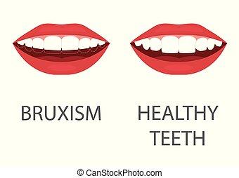 dental, moer, problema, odontologia, appliance., dente, saúde, teeth., bruxism., care.