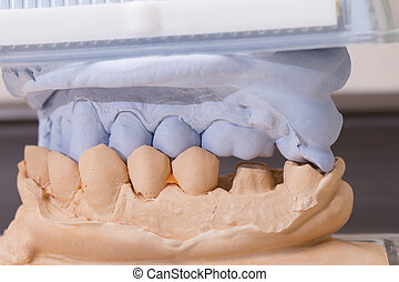Dental Mold For Prosthetic Teeth - Dental mold and models...