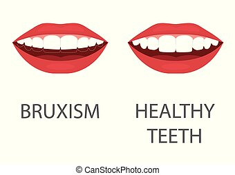 dental, molienda, problema, odontología, appliance., diente...