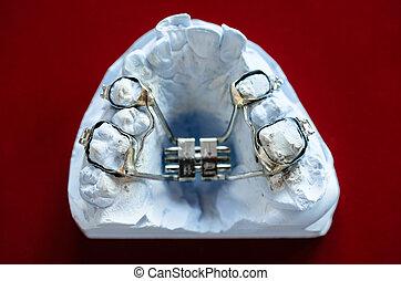 Dental moulds