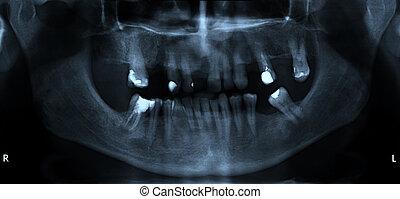 dental, mund, röntgenaufnahme