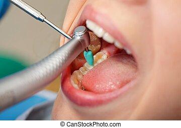 dental, obturation