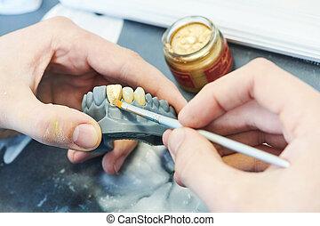 dental, pintura, prótesis, work., dientes