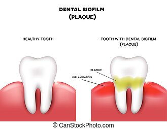 Dental plaque with inflammation and healthy tooth on a white...