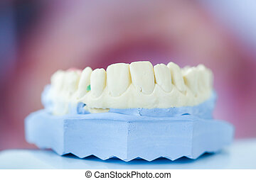 Dental plaster mold with open mouth picture in the...