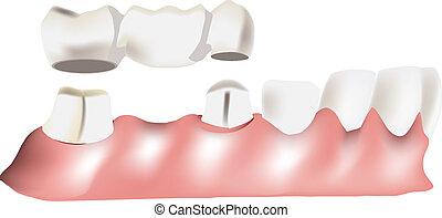 dental, ponte