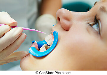 dental procedure of teeth protecting - woman with open mouth...