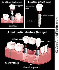 Dental procedures on black