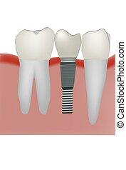 dental prosthesis dental practice implant