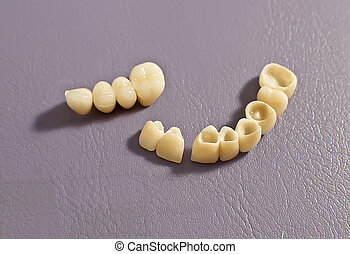 Dental prosthesis .