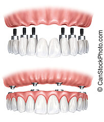 Dental prosthesis - Image of a denture prosthesis