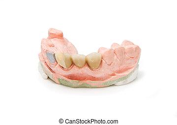 Dental prosthesis on gypsum model plaster