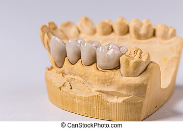 Dental prosthesis on the chalk model