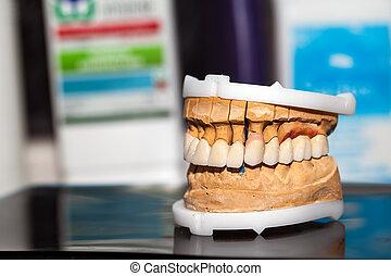 Dental Prosthesis Porcelain Zirconi