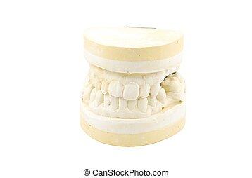 Dental prosthesis study model on white - study model of a...