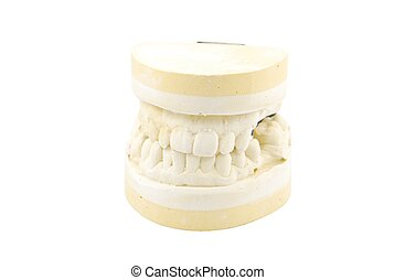 Dental prosthesis study model on white - study model of a...