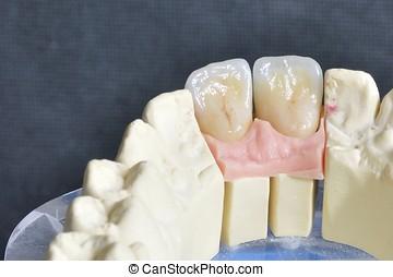 Dental prosthesis, upper incisors - Dental prosthesis, back...