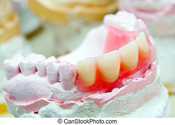dental prosthetic - teeth mold and prosthetic devices....