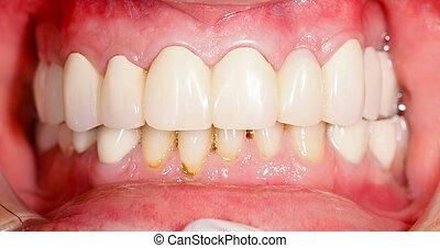 Dental Prosthetics - Human mouth with dental prosthetics in...