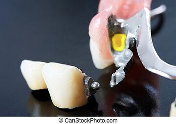 dental, prothese