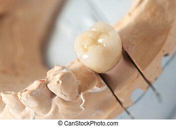 Technical shots on a dental prothetic laboratory