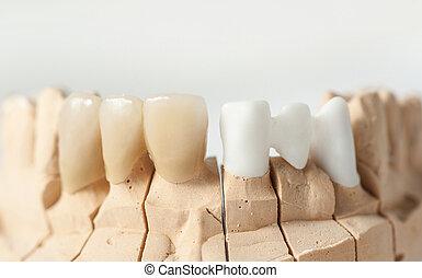 Dental prothetic - Technical shots on a dental prothetic ...