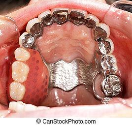 dental, prothetik
