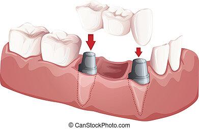 dental, puente