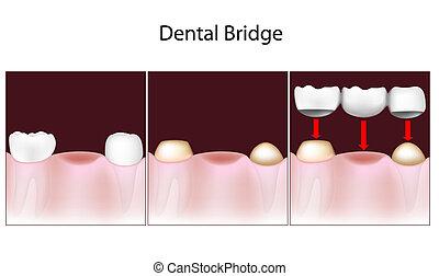 dental, puente, procedimiento