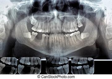 Dental radiography (ortopanoramica) Digital x-ray teeth scan. Panoramic negative image facial of adult male.