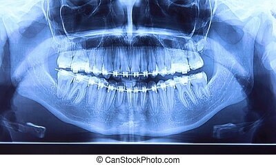 Dental radiography with braces - Dental x-ray with braces. ...