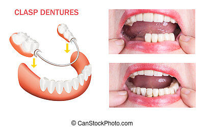 Dental rehabilitation with upper and lower prosthesis, ...