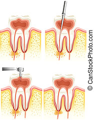 Dental root canal - Illustration of a Dental root canal...