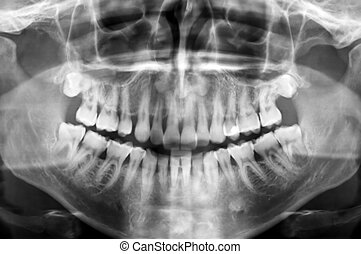 dental scan - Dental scan x-ray of a 35 year old man.