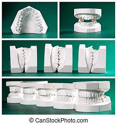 dental study models on green