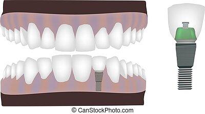 dental technician dental instrument reconstruction