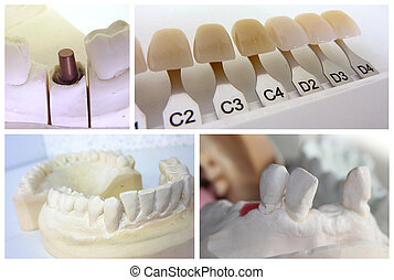 Dental technician collage with plaster mouth, implant abutment and dental shade guide