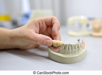 Dental technician working - Closeup of dental technician...