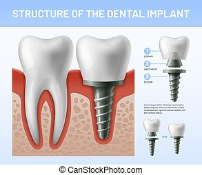 Dental teeth implant. Implantation procedure or tooth crown abutments. Health care vector illustration