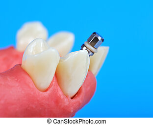 dental, titan, implantat
