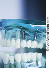 Dental tooth implant model
