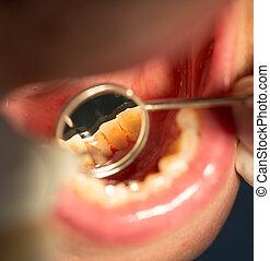 dental treatment in dentistry