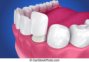 Dental Veneers: Porcelain Veneer installation Procedure. 3D ...