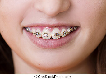 Dental visit - Teenage girl with the braces on her teeth is...