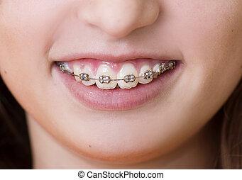 Dental visit - Teenage girl with the braces on her teeth is...